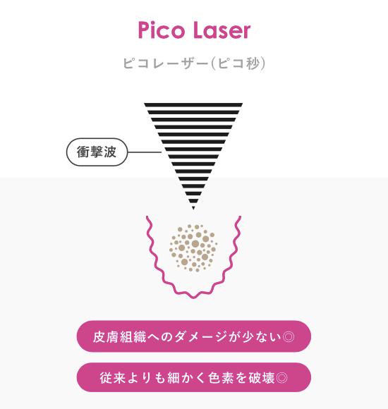 ピコレーザー(ピコ秒)